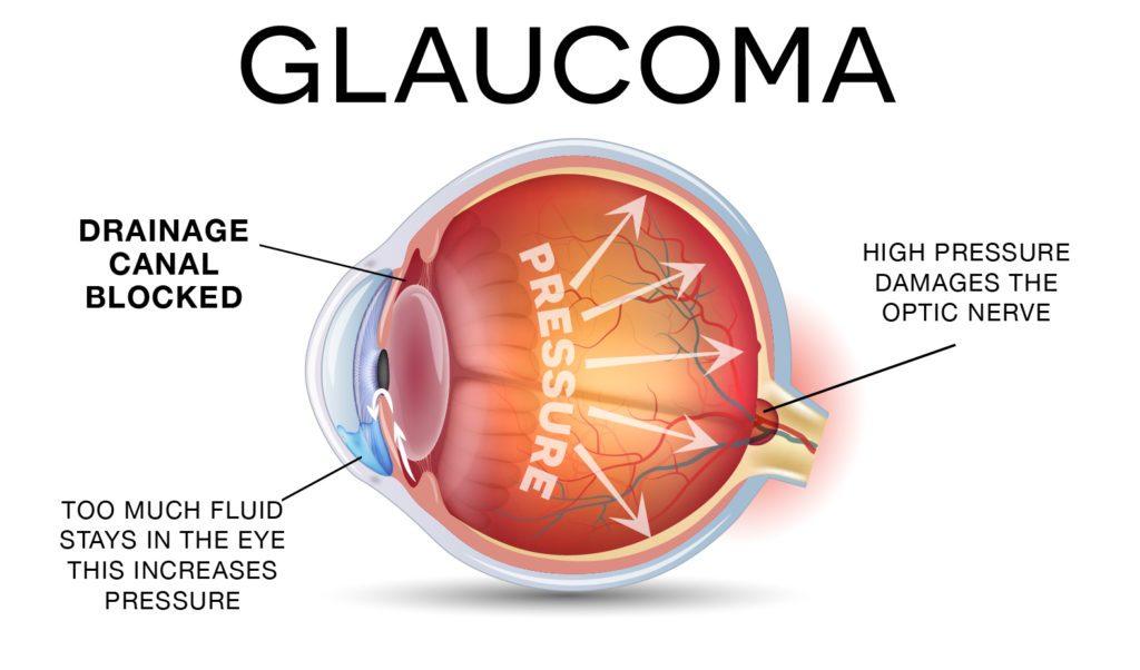 Understanding Eye Pressure - Glaucoma Specialists