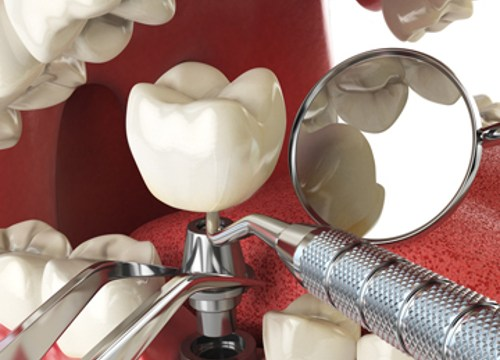 fuss about dentali mplants