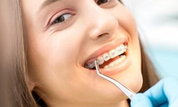 braces correct overbite