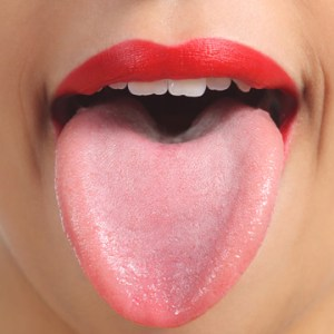 how to tell if you have tongue thrust