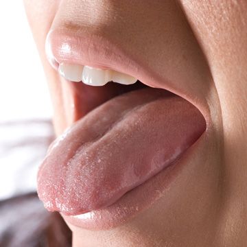do you have tongue thrust