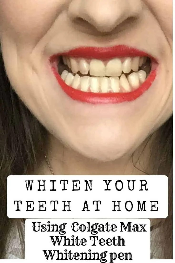 whiten your teeth at home using colgate max white whitening pen