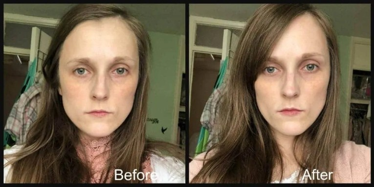 super facialist pure sensitive day cream before and after