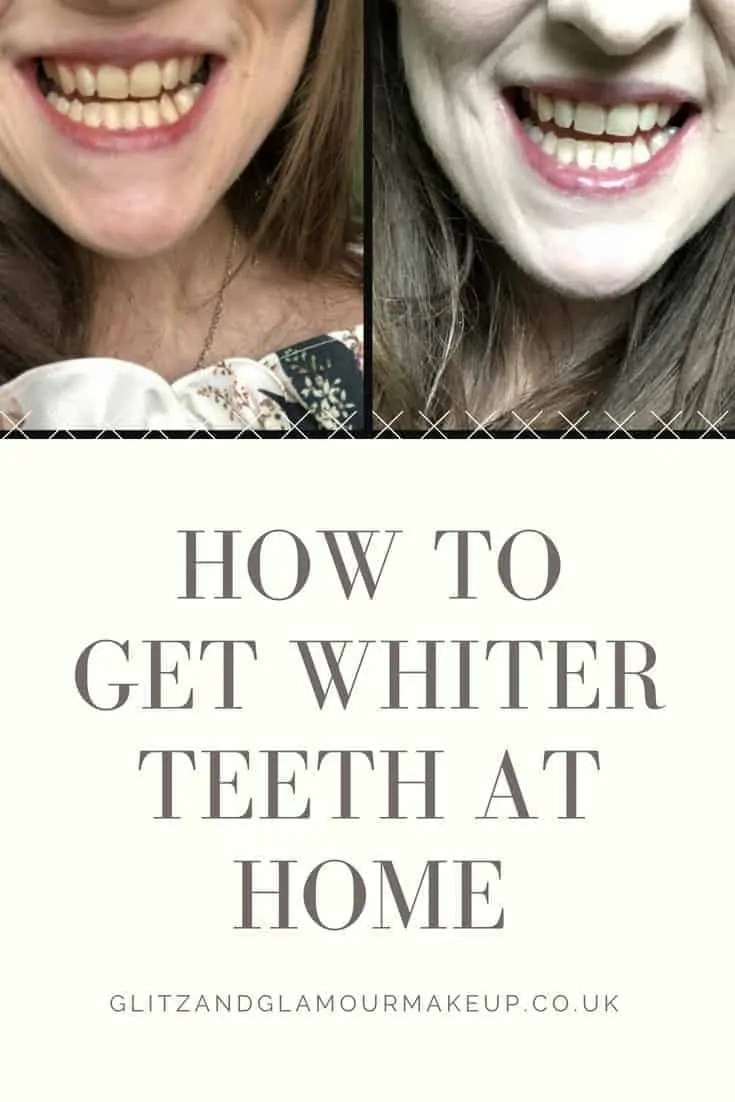 Discover how Billion Dollar Smile LED teeth whitening kit can give you whiter teeth