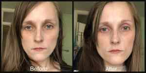 no7 laboratories line boosting corrector serum before and after