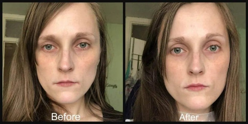 boots no 7 laboratories line boosting corrector serum before and after