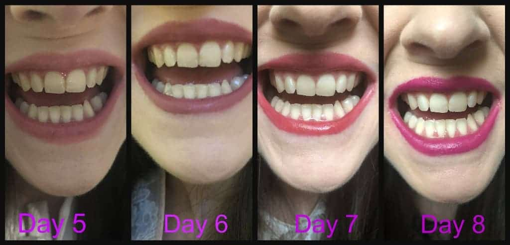 Tutorial  Kit Snow Teeth Whitening