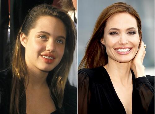 Angelina Jolie with Braces