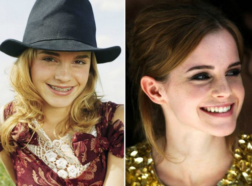 Emma Watson Famous Actresses with Braces