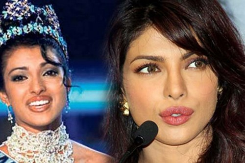 Bollywood Actresses Who Went Through Plastic Surgery