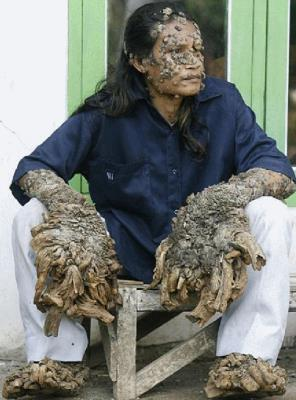 Tree-Man Disease