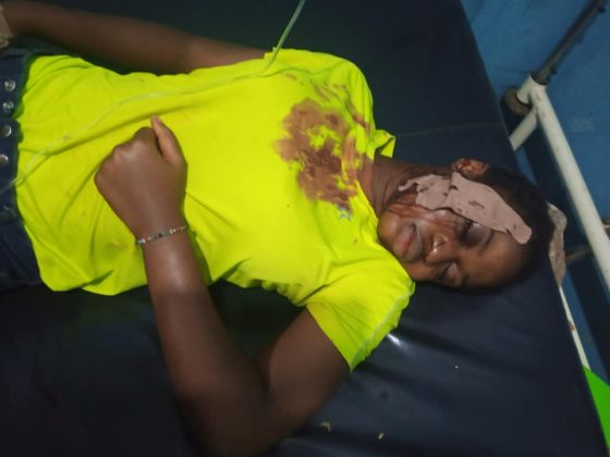 A Nigerian lady Survives Bullet In Her Head For Five Days In Ebonyi