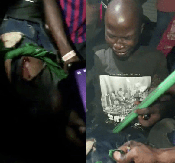 EndSARS Protesters struggling to remove bullet from victim's body at Lekki being shot by millitary