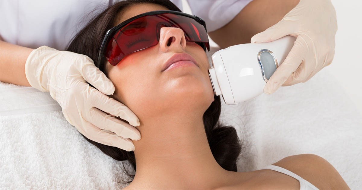 Thinking Of Laser Hair Removal Here S What You Need To Know