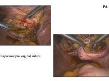 Radical Laparoscopic Hysterectomy part 2 | Slides | GLOWM