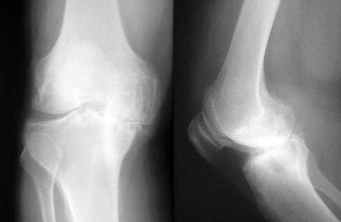Radiological Degenerative Joint Disease (Osteoarthritis) of the Knee   Arthritis Research and Glucosamine Information Center