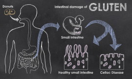 Intestinal_Damage_Gluten