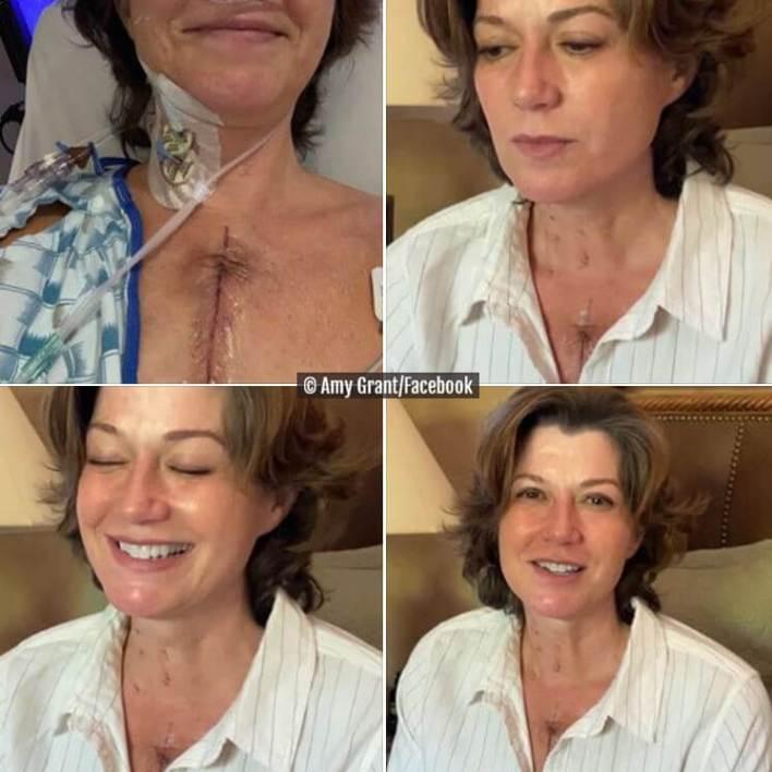 Amy Grant_Open Heart Surgery_Scar