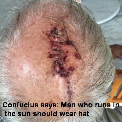 Confucius says: man who runs in sun should wear a hat
