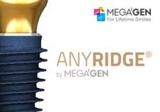 mega gen implant