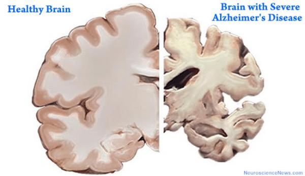 Alzheimer's shrinks brain