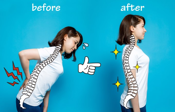 before and after posture of woman with lower back pain