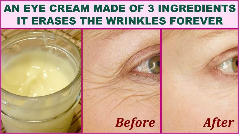 An Eye Cream Made of 3 Ingredients That Will Make You Feel 5 Years Younger: It Erases the Wrinkles Like With a Rubber!