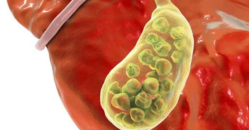 Guide to Safe Gallbladder Cleanse