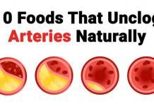 Foods That Unclog Arteries