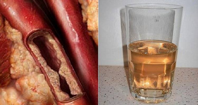 This Simple Drink Will Unclog Arteries And Protects Against Heart Diseases