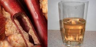 A Simple Drink Will Unclog Arteries