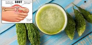 STOP Gout And Joint Pain