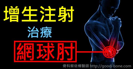 《案例分享》導引增生注射 治療 多年網球肘 – 骨科蔡依樽醫師