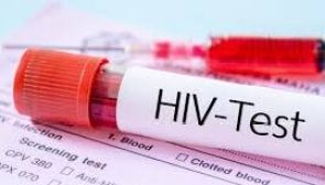 ways of preventing HIV /AIDS