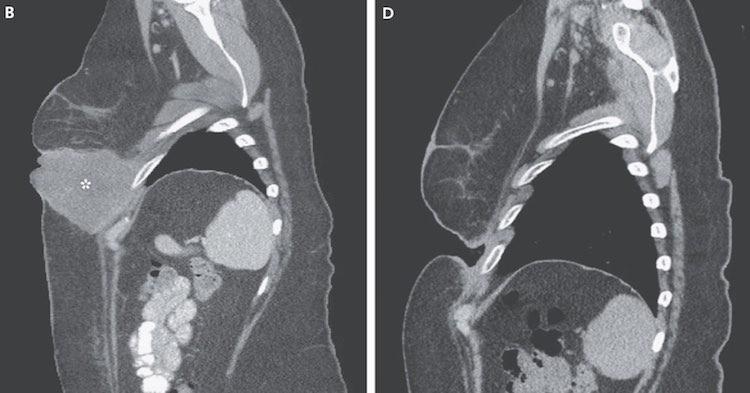 Melanoma-CT-Scan-NewEnglandJournalofMedicine.jpg