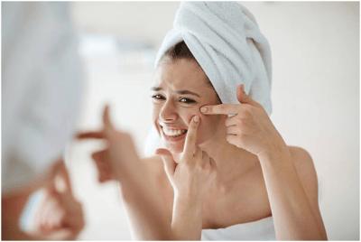 women pimple