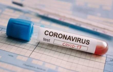 Польща оплатить тестування на коронавірус для мігрантів з України