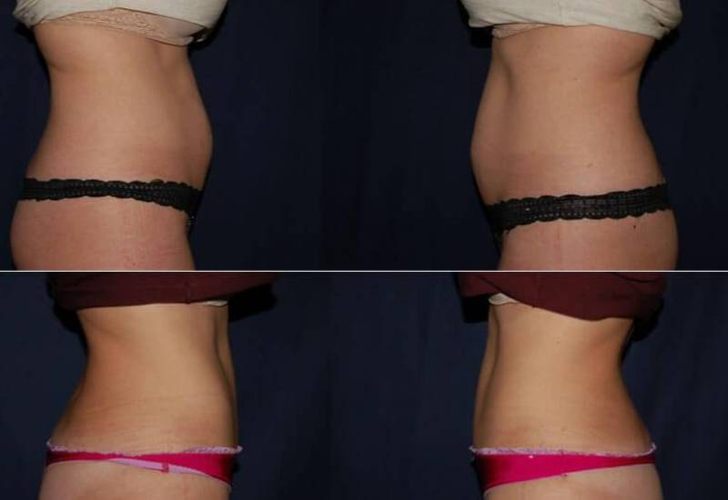 319 Abdominoplasty Before and After Photo