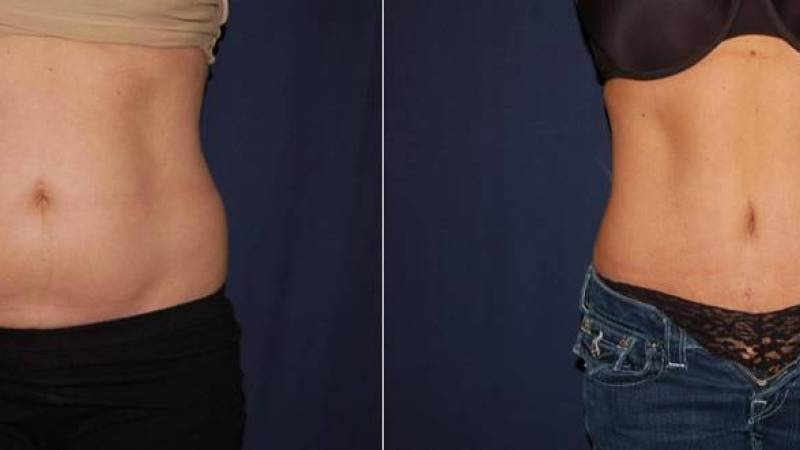 256 Tummy Tuck Before and After Photo