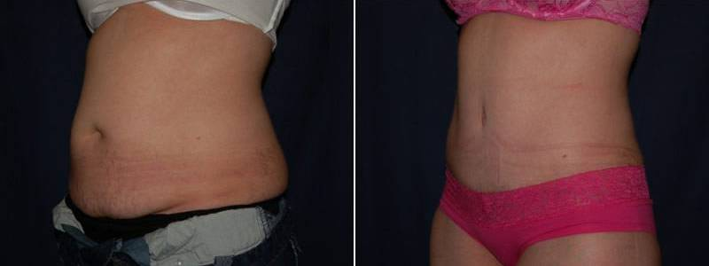 238 Tummy Tuck Before and After Photo