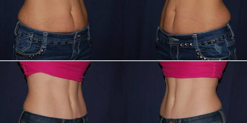 230 Tummy Tuck Surgery Result