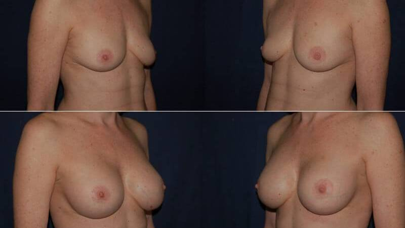157 Breast Enlargement Before & After Photo