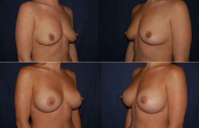 155 Breast Enlargement Before & After Photo