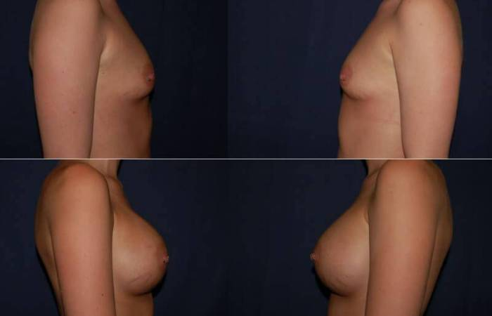 154 Breast Enlargement Before & After Photo
