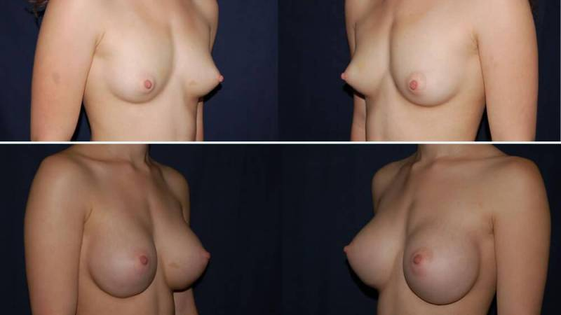 145 Breast Enlargement Before & After Photo