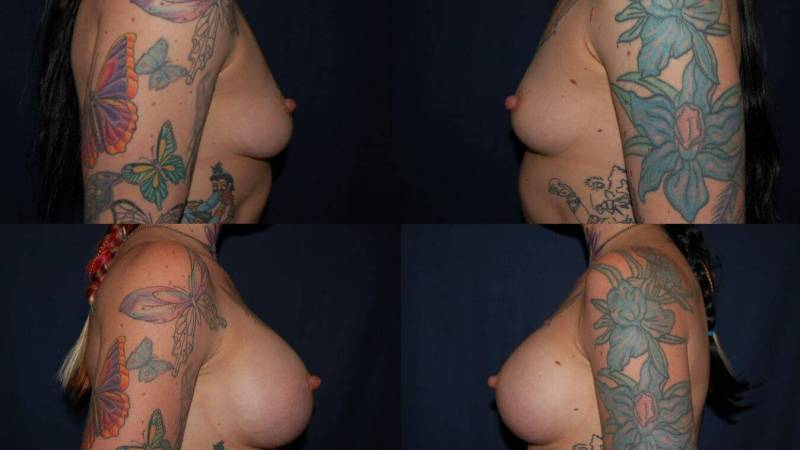 142 Breast Enlargement Before & After Photo
