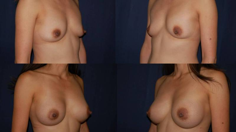 130 Breast Enlargement Before & After Photo