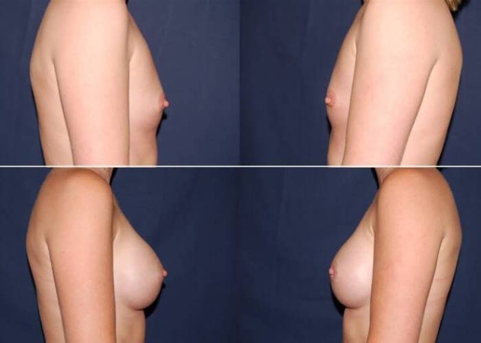 116 Breast Enlargement Before & After Photo