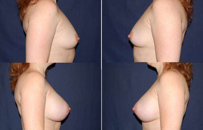 109 Breast Enlargement Before & After Photo
