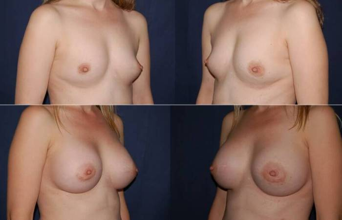 184 Breast Augmentation Before and After Photo